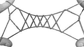 string-gate